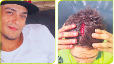 Victim, Joel Barker, needed 10 stictches in his head after the assault