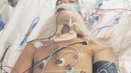 Nathan Joyce in care at Wyong Hospital